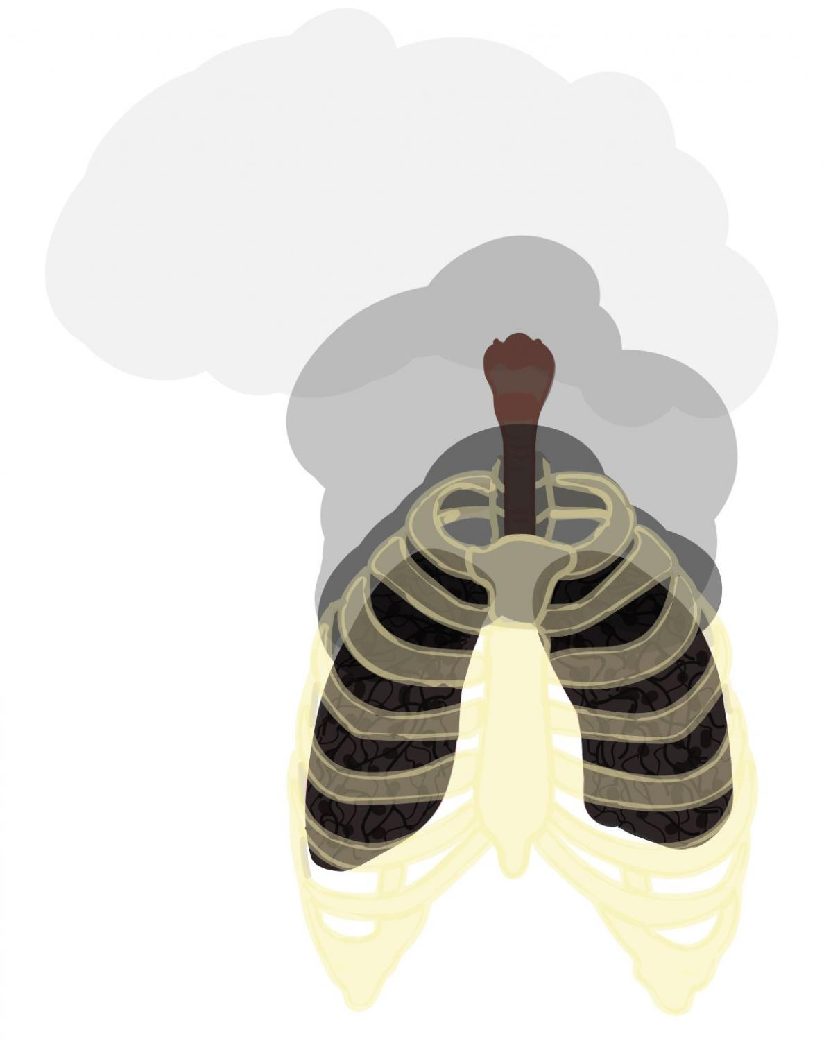 This is a visual representation of 'popcorn lung' after vaping.